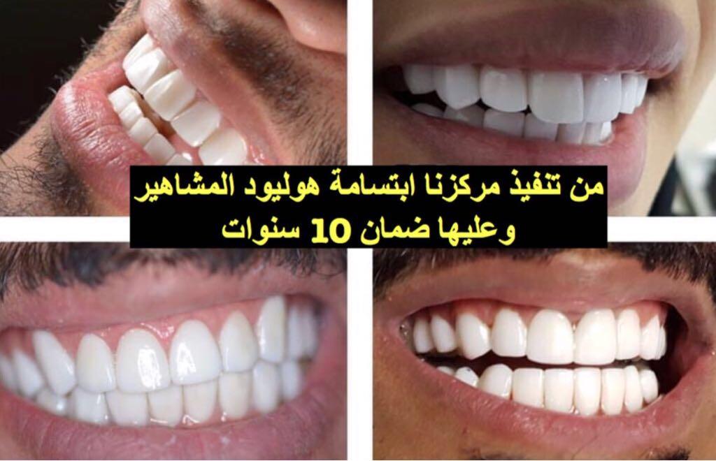 #عيادة اروكا #الاسنان و#الجلدية #الرياض 0112222815 وتنظيف أسنان بالرياض