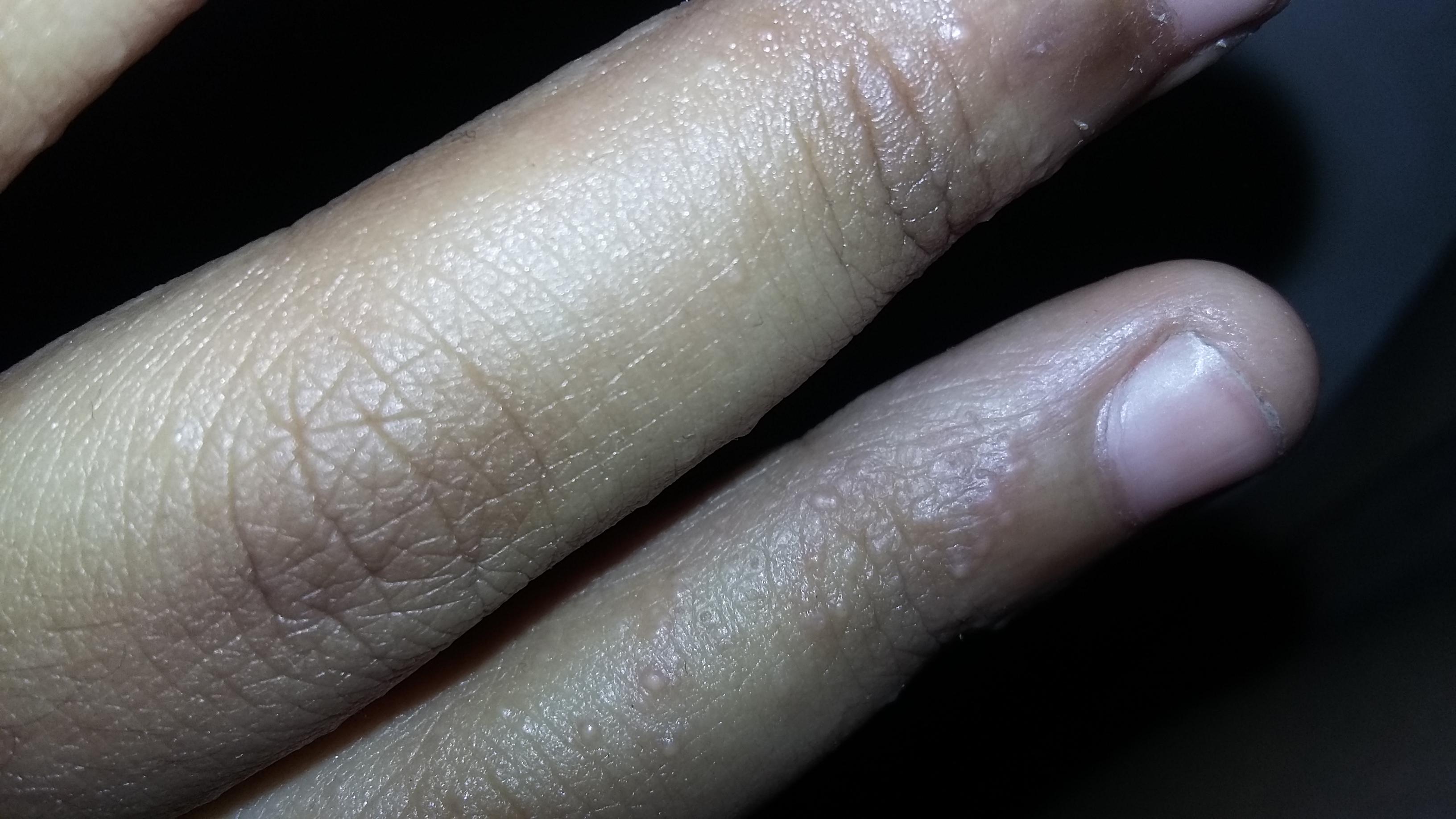 حبوب حمراء صغيره في اليد عيادات العرب الطبية موقع استشارات طبية مجانية