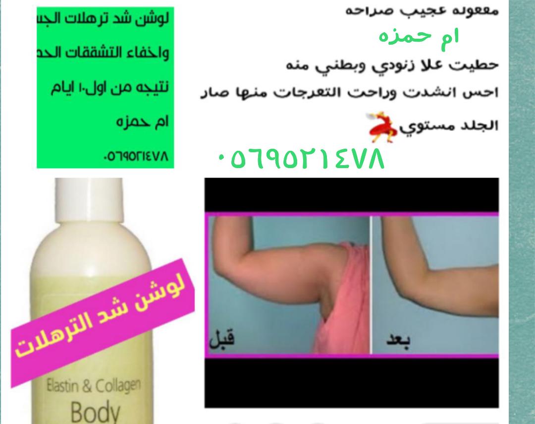تخلصي من الترهلات والتشققات جسم مشدود مع لوشن شد الجسم p_835hhtdx3.png